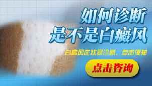 男性白癜风疾病诊断